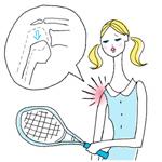 脱臼の症状について