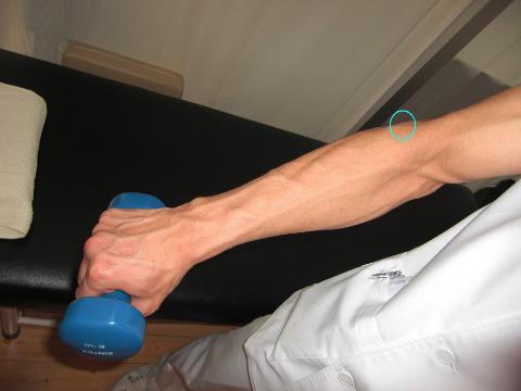 上腕骨外側上顆炎,部位